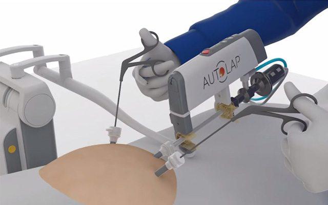 המערכת הרובוטית שמסייעת למנתח. מקור: סרטון וידאו, MST