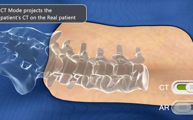 """הדמיית עמוד השידרה """"בתוך"""" גופו של המנותח. מקור: Augmedics"""