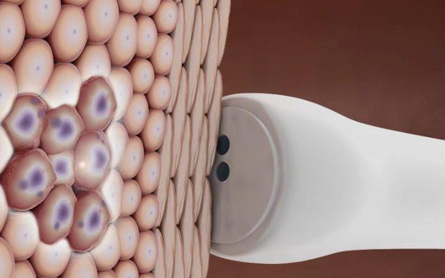 יכולת לזהות תאים נגועים, מקור: Biop Medical