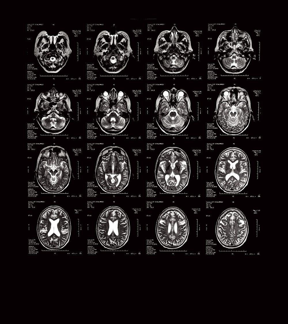 סריקות מוח כמו אלו שמוצגות כאן מראות שלפסיכופתים עלולים להיות פגמים באזורים שקשורים לשליטה בדחפים ולעיבוד רגשי (תמונה: מדע פופולארי)